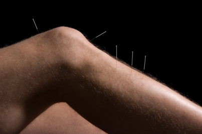 r650c650_acupuncture-knee